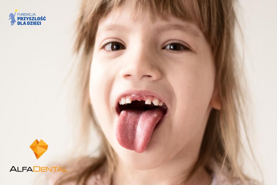 Zdrowe zęby to przyszłość dzieci